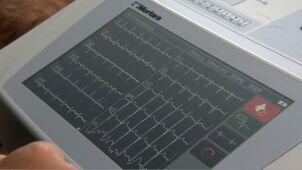 12-latka zmarła na koloniach z powodu choroby serca. Kardiolog: sytuacja była nie do przewidzenia