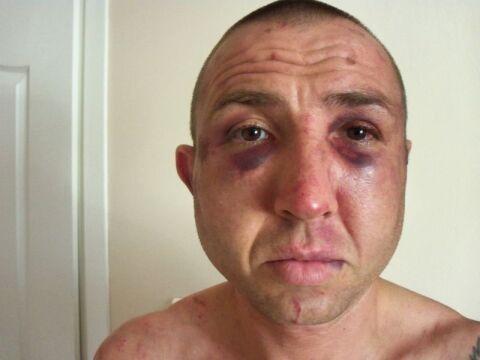 Tak Rafałko wyglądał po pobiciu przez policję