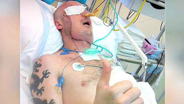 Pacjent po przeszczepie twarzy wstał, połyka i widzi